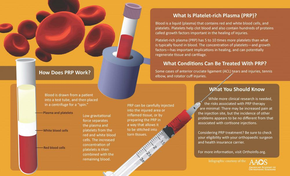 Platelet-Rich Plasma is blood liquid that contains red and white blood cells & platelets. Injecting PRP promotes healing.