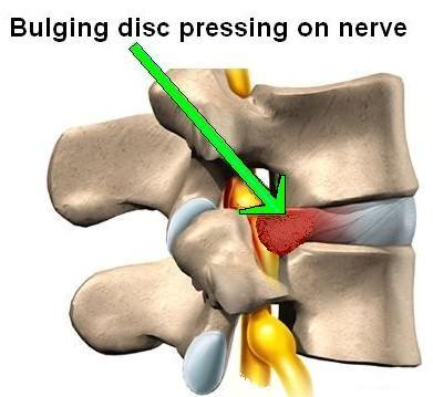 bulging disc pressing on nerve