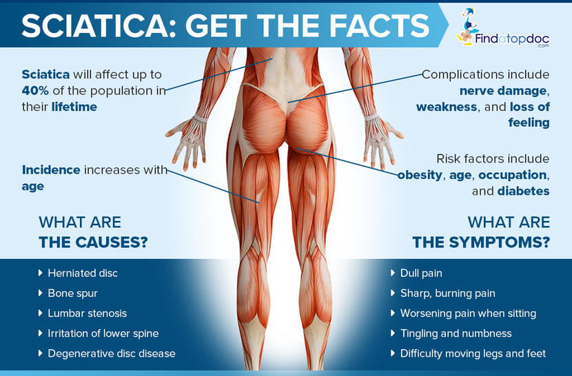 Sciatica Facts Causes & Symptoms