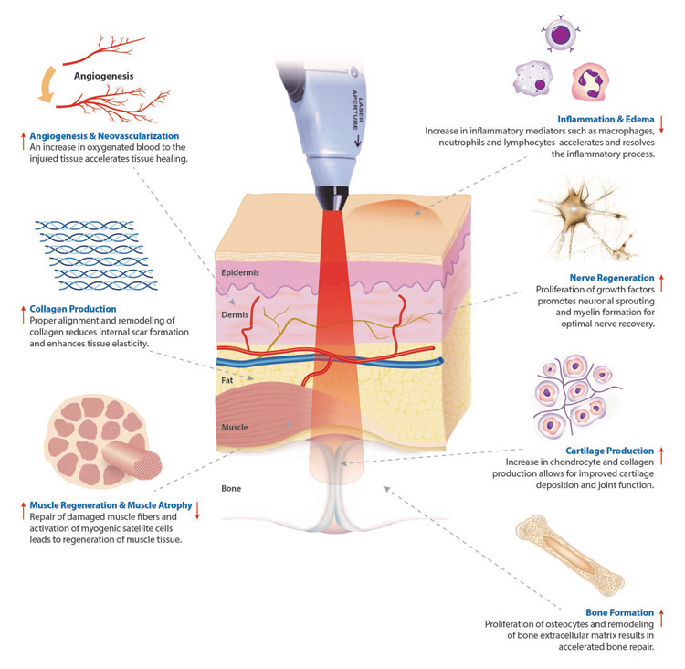 cold laser therapy diagram