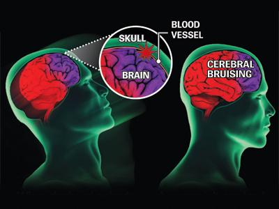 Concussions in Athletes