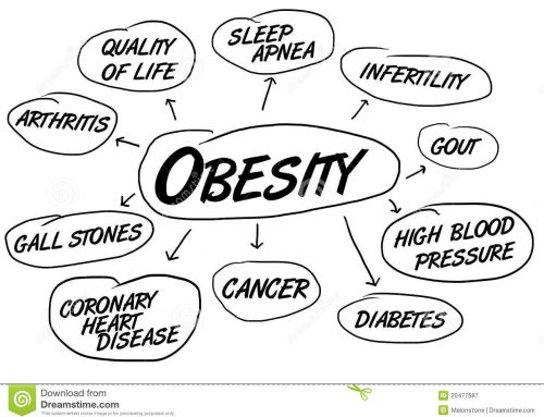 Obesity Causes Heart Disease [News]