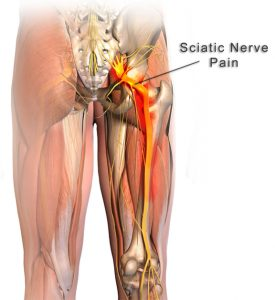 sciatic nerve and nerve pain